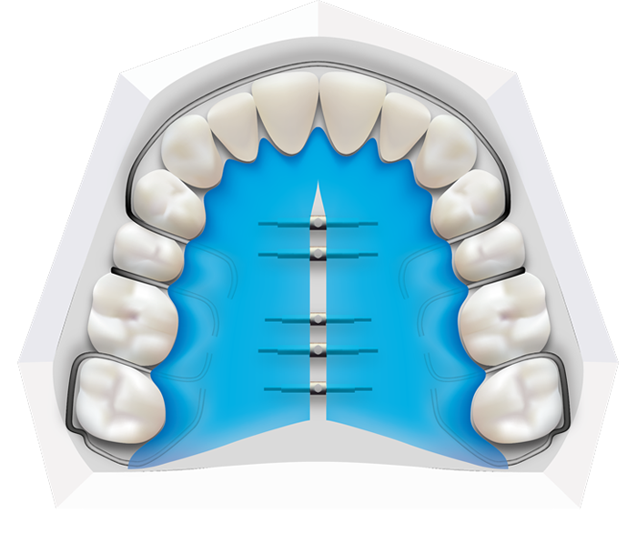 Removable Braces at Toothbeary