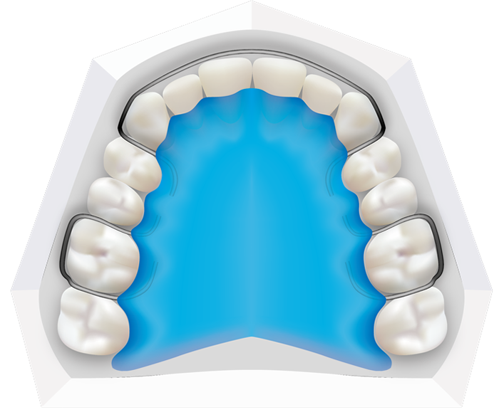 Removable Retainers at Toothbeary