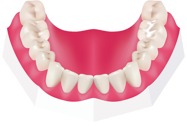 Fissure sealants at Toothbeary